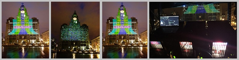 EMF LIVER BUILDING PROJECTION